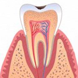 cavity-1