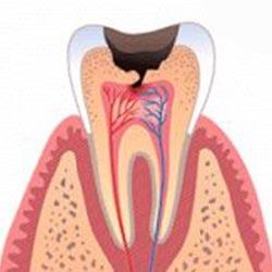 cavity-3