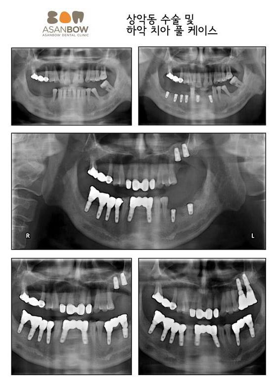 implant-case (1)