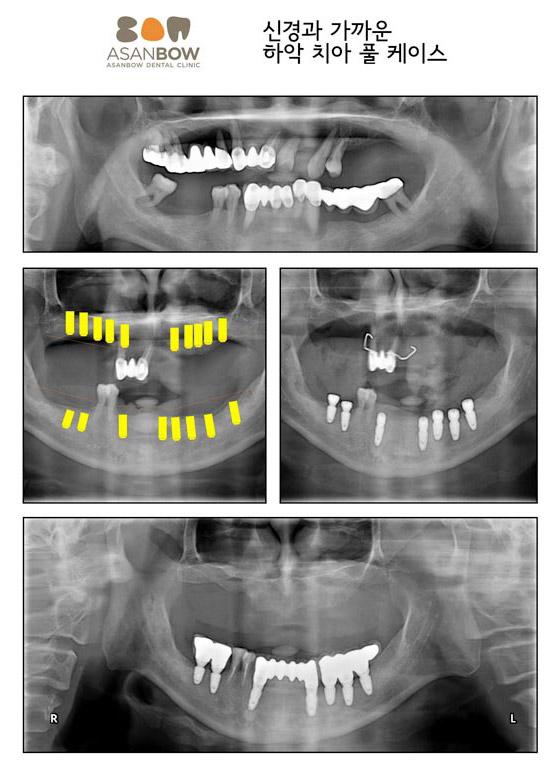 implant-case (11)