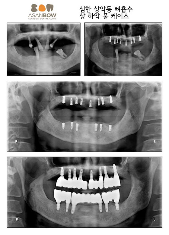 implant-case (12)