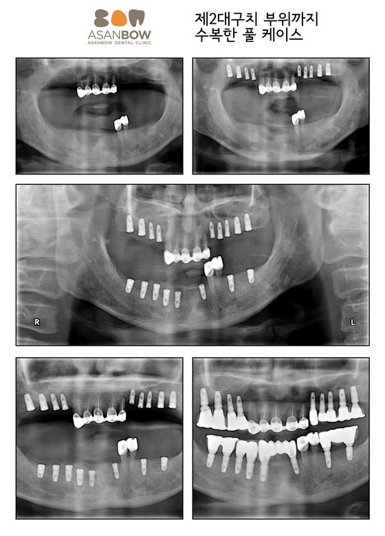 implant-case (13)