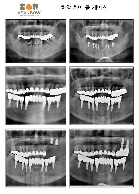 implant-case (14)