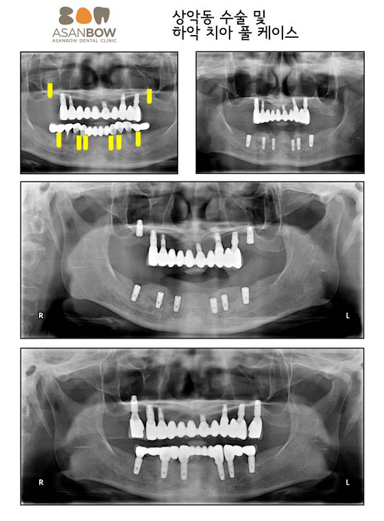 implant-case (2)