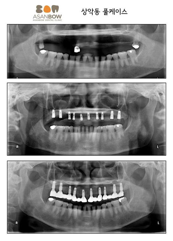 implant-case (4)