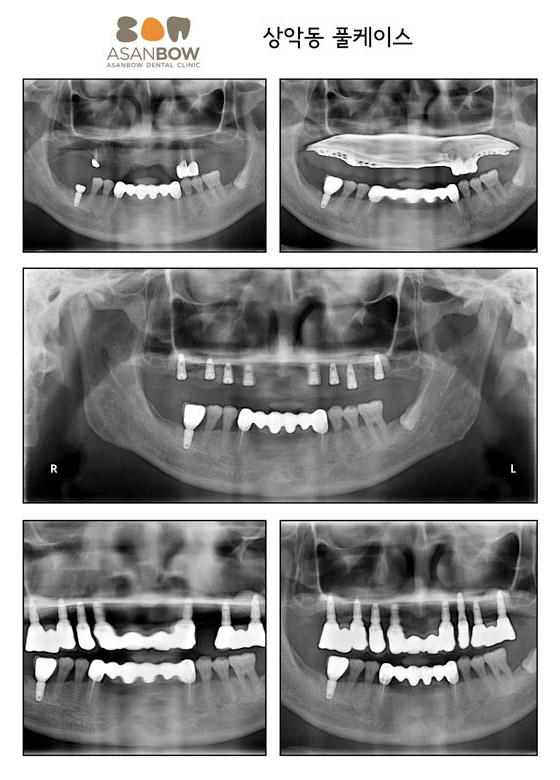 implant-case (5)