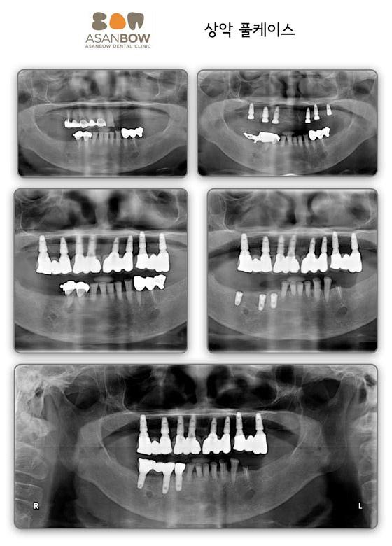 implant-case (6)