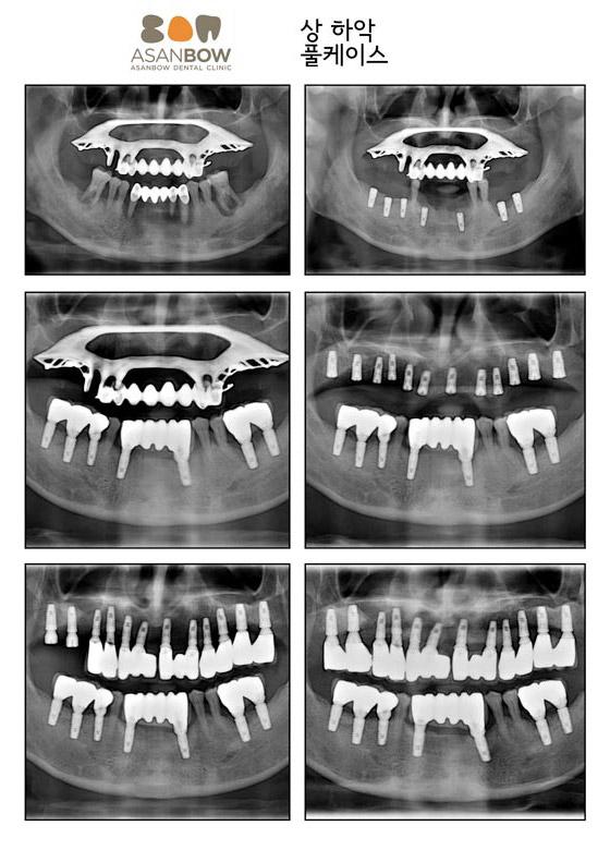 implant-case (7)