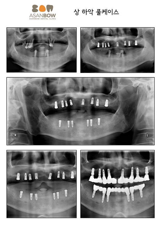 implant-case (9)