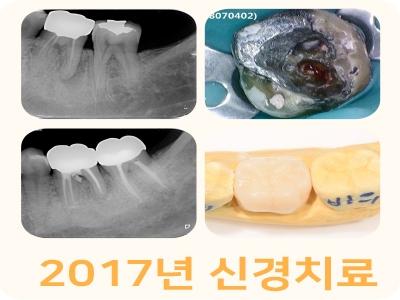 2017년-신경치료-1