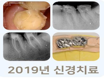 2019년-신경치료