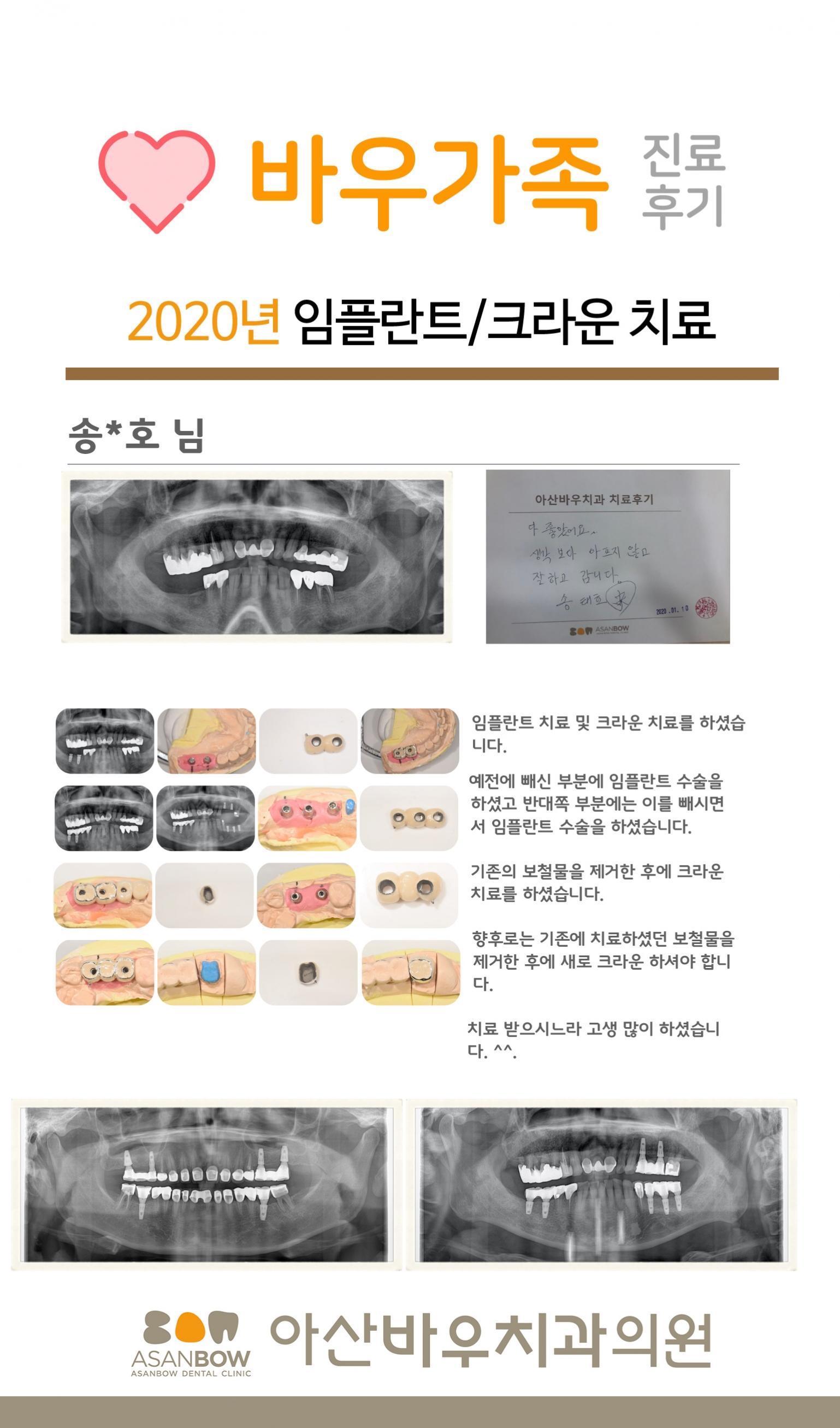 20120년-진료후기-송태호