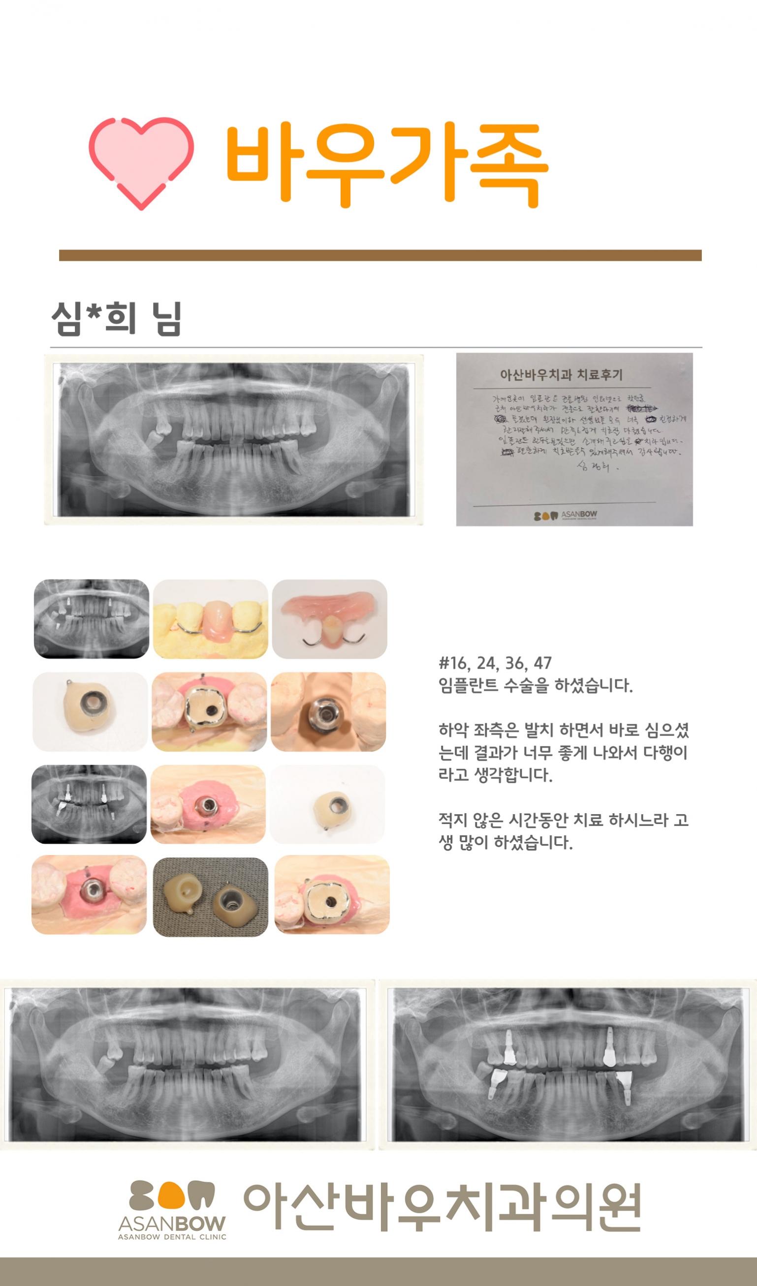 20120년-진료후기-심정희