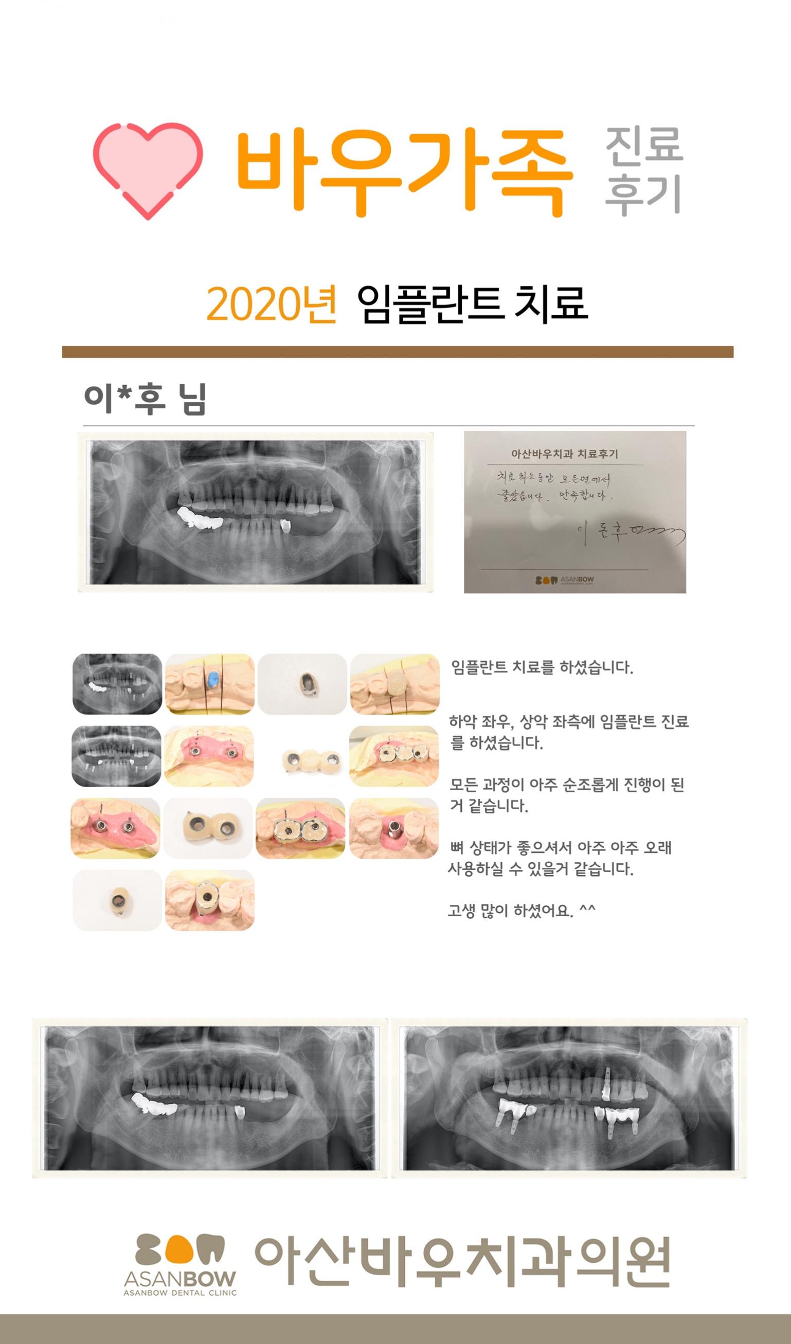 20120년-진료후기-이돈후