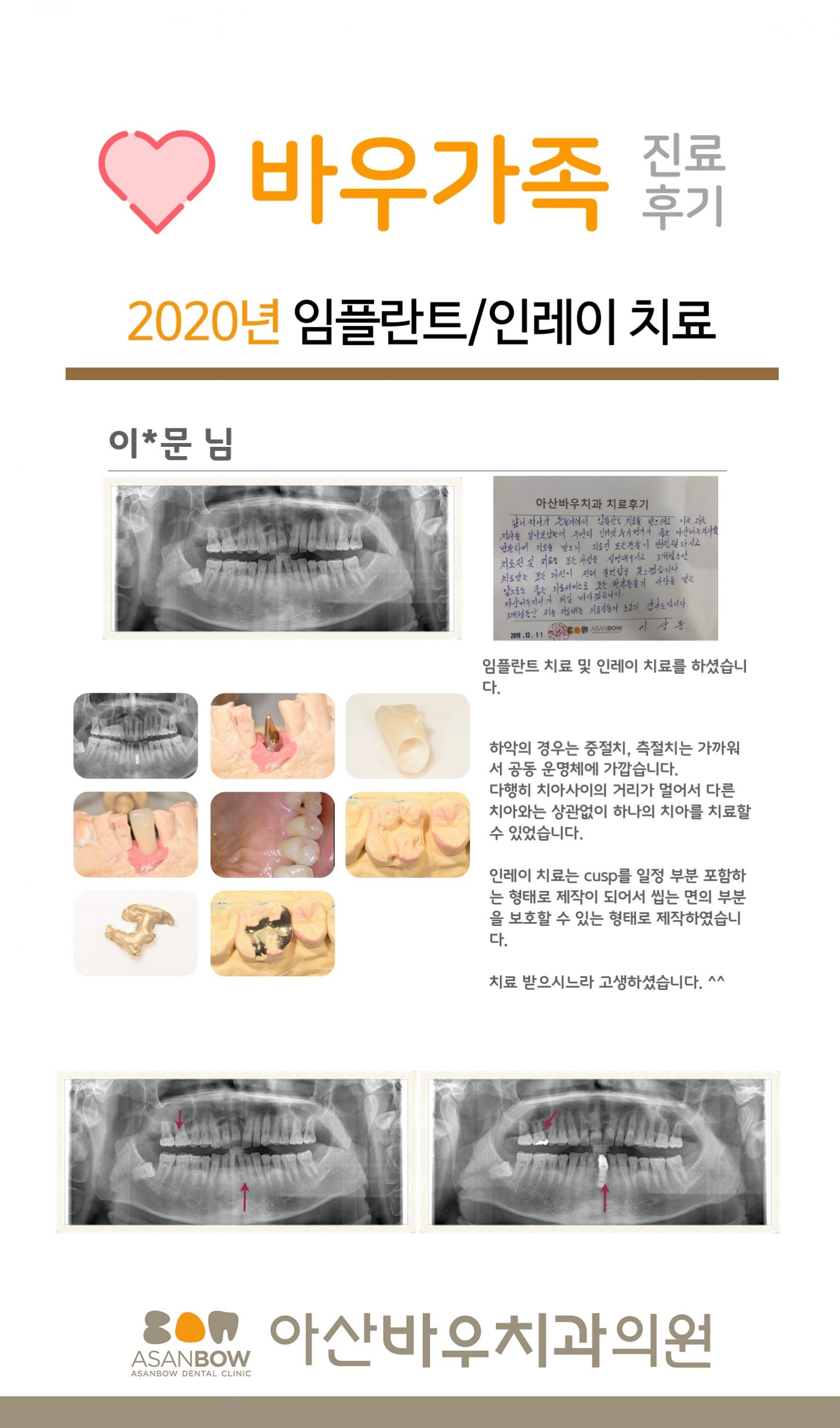 20120년-진료후기-이상문