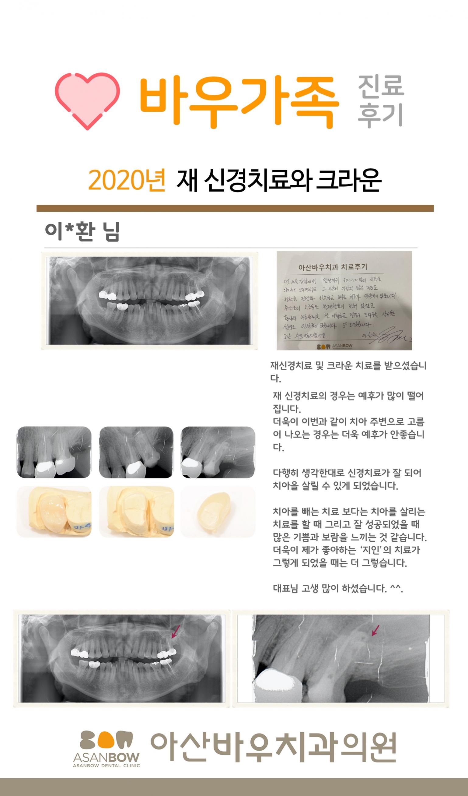 20120년-진료후기-이승환