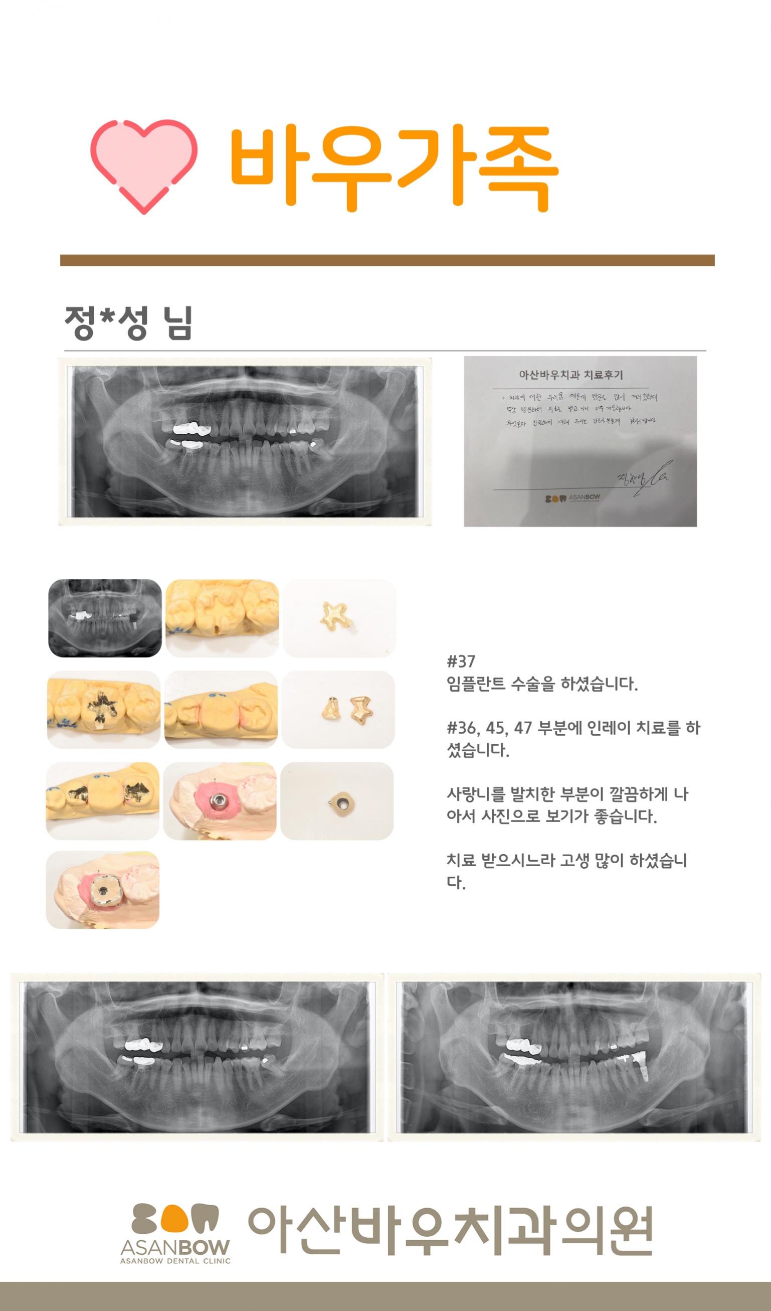 20120년-진료후기-정한성